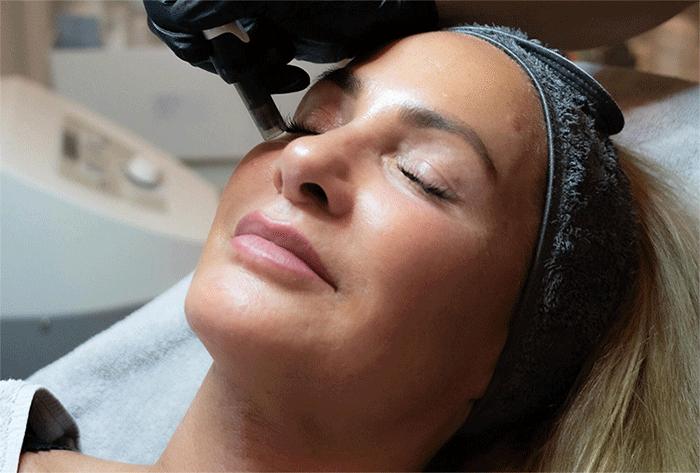Frau bekommt Face Filling Behandlung